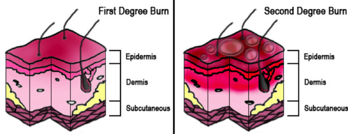 Graph showing the different degrees of skin burn